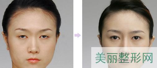 眼睑凹陷矫正术怎么样 眼睑凹陷矫正术前后对比图