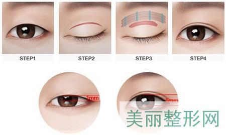 埋线,韩式三点,全切,双眼皮