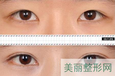 埋线双眼皮,手术,优点