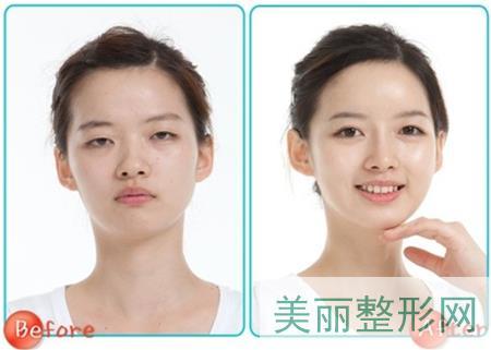 双眼皮,手术,恢复,时间