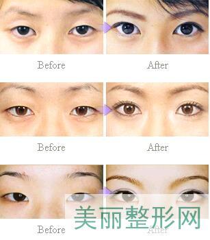双眼皮手术后的7大注意事项是什么