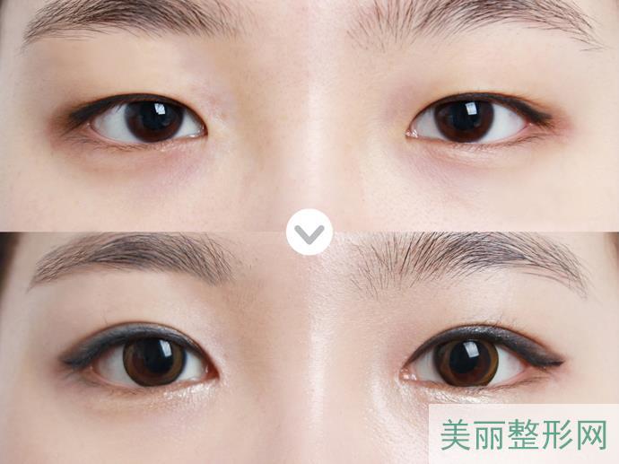 眼部整形手术后注意事项