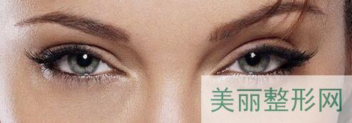 y洲人能做欧式双眼皮吗