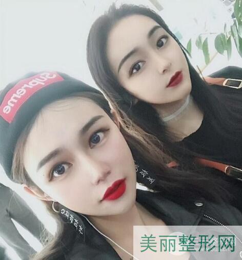 北京清木医疗美容怎样?附面部吸脂全过程及术后对比照片