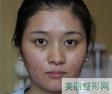 武汉协和整形科怎么样?武汉协和整形科祛疤痕案例分享!