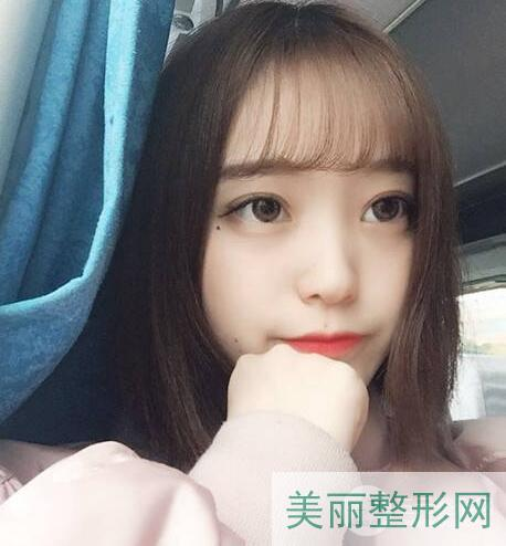 上海九院割双眼皮多少钱?上海九院割双眼皮找谁比较好?
