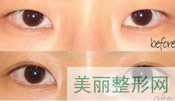 西京医院皮肤科