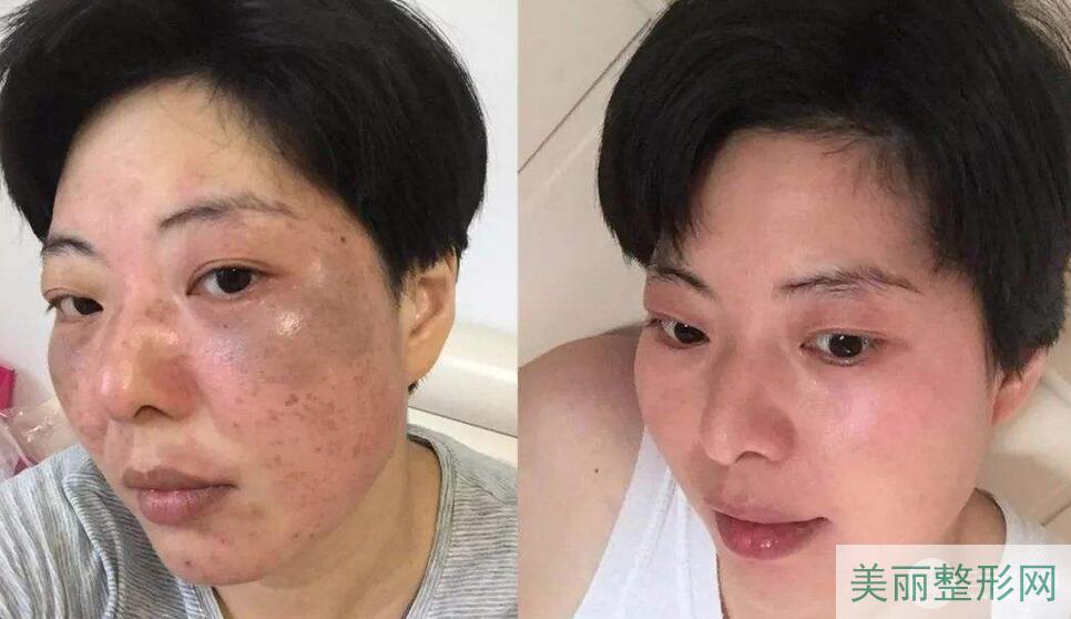 北京304医院皮肤科