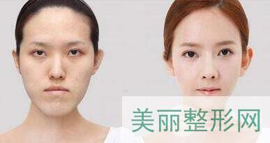 韩式改脸型
