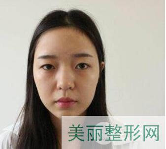 北京八大处尤建军鼻综合案例分享