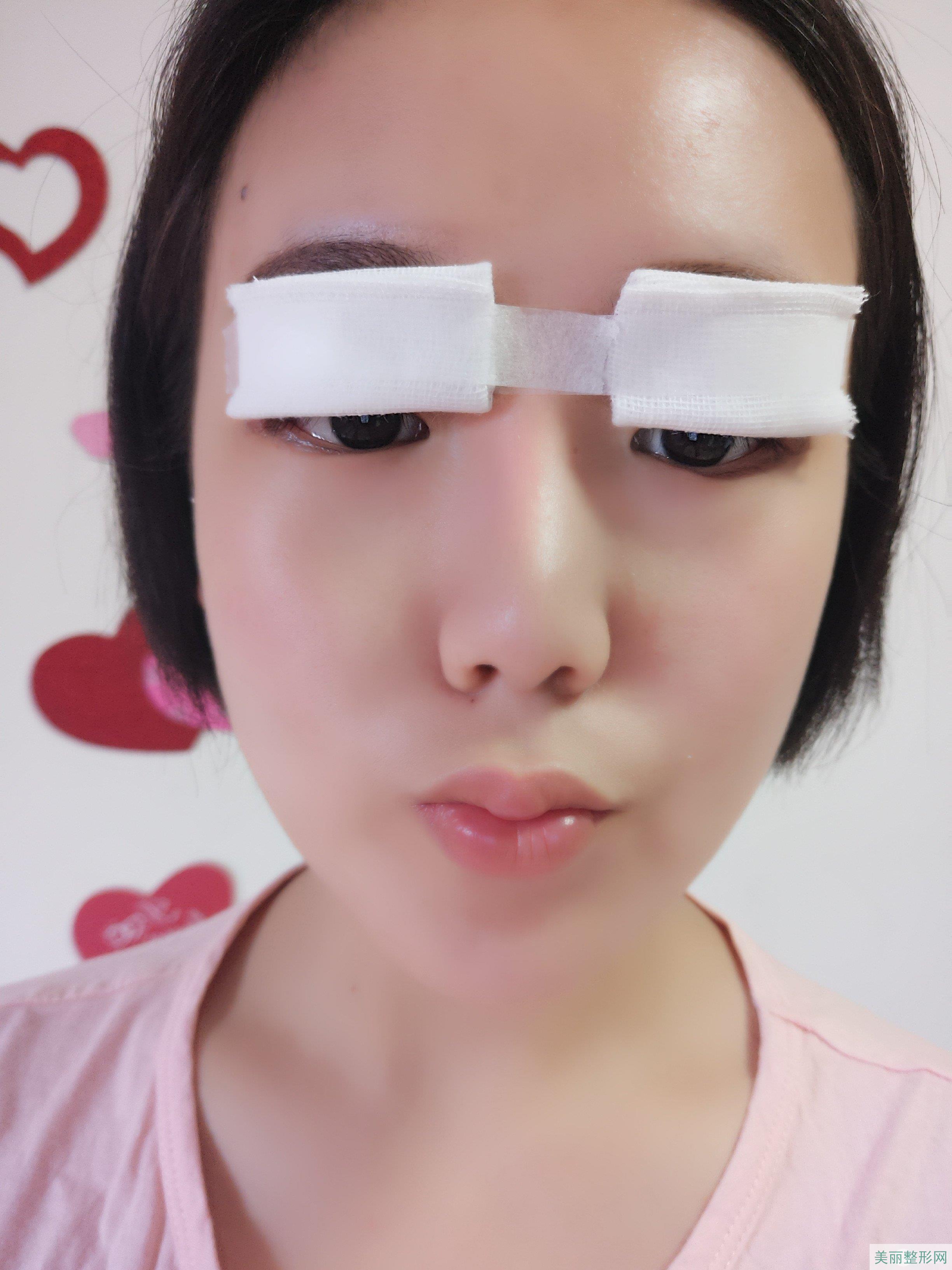 西安西京美容医院割双眼皮