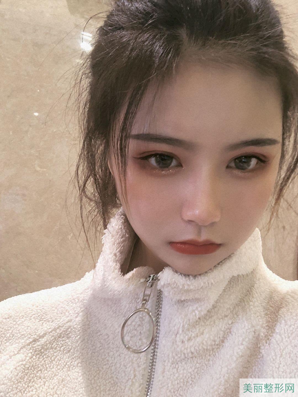 上海411医院整形外科怎么样 附全切双眼皮案例