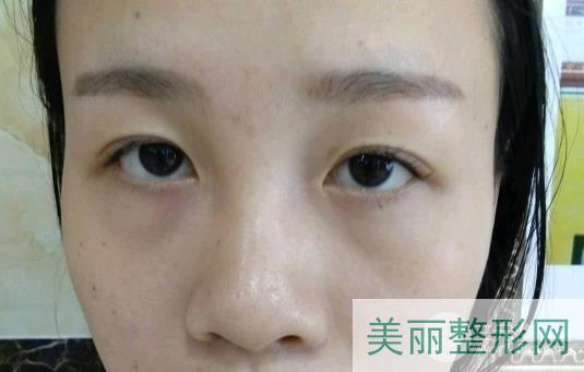 萧山第一人民医院整形科做眼袋案例