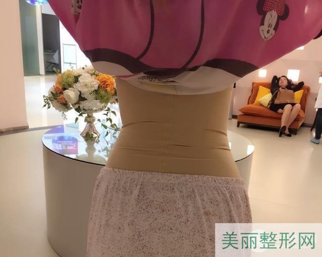 杭州浙一医院抽脂案例