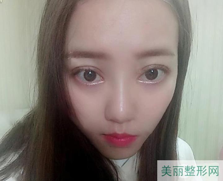 浙一医院双眼皮价格表:肖威医生做的双眼皮