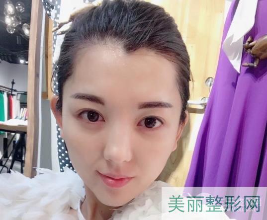【案例】浙一医院美容科吴慧玲双眼皮,网友近期反馈