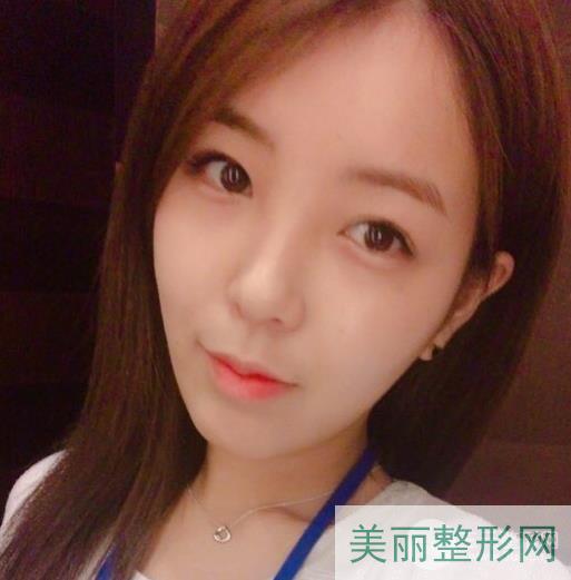 上海411医院整形科怎么样 附埋线双眼皮案例~