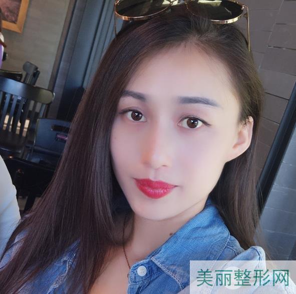 武汉市第三医院整形美容科价格表,附激光祛斑案例