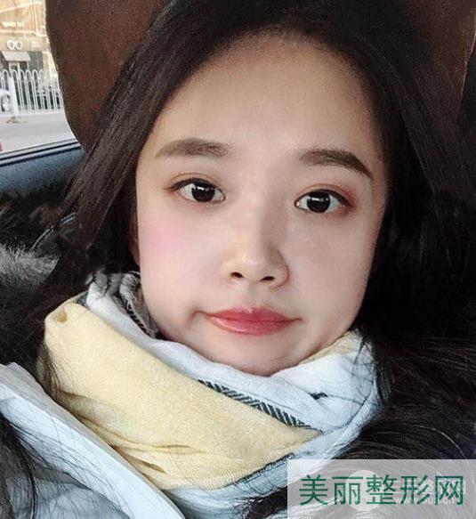 重庆西南医院整形科祛眼袋新技术,可选择医生简介
