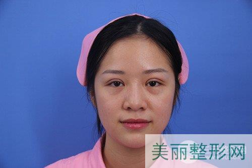 安庆市立医院整形科双眼皮案例 术后30天反馈~