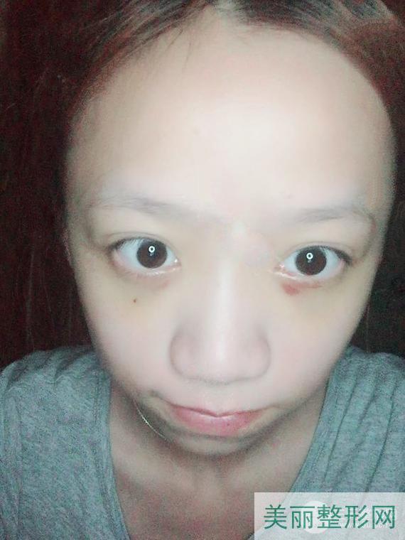 湘雅二医院整形美容科祛眼袋好吗?祛眼袋案例告诉你答案!