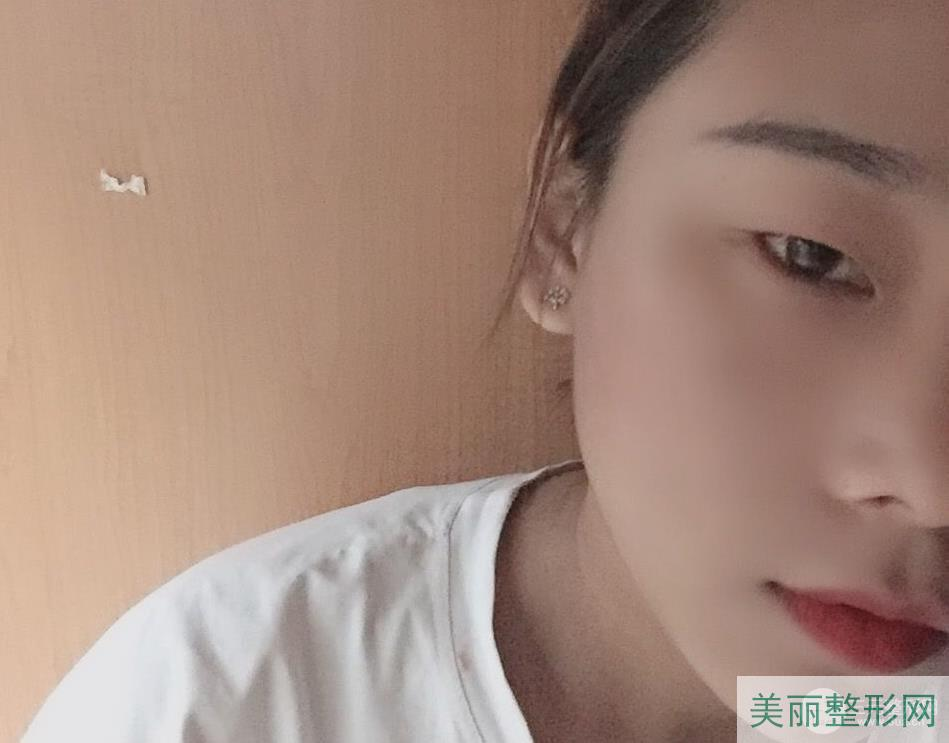 重庆新桥医院割双眼皮案例 让你双眼宛若天生~