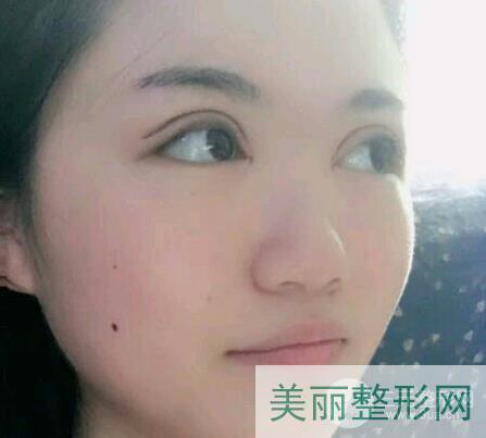 杭州浙一医院双眼皮案例图集,徐靖宏医生手术实例