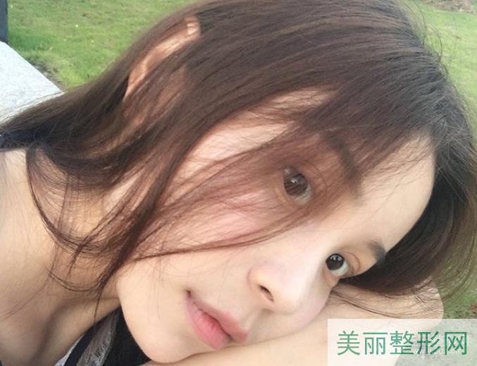 浙医二院薛旦双眼皮案例 不愧是精雕大师~