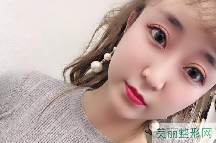 浙医双眼皮收费标准 范希玲双眼皮案例效果图近期反馈