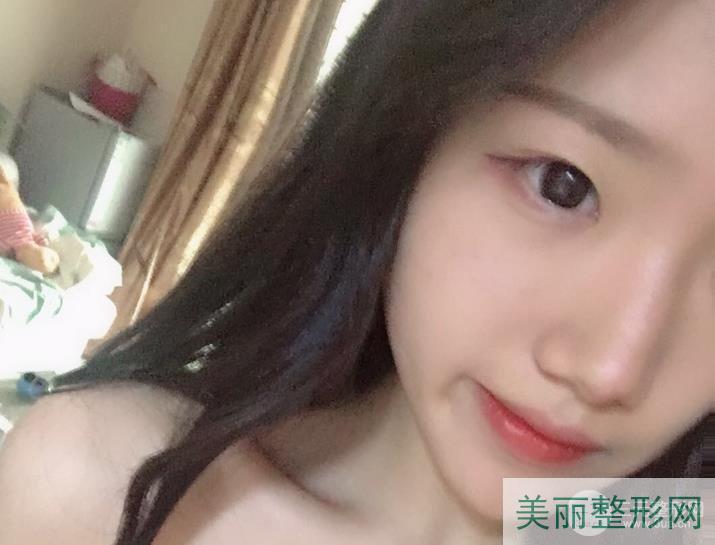 浙二美容科价目表2020版本 附激光祛痘案例~