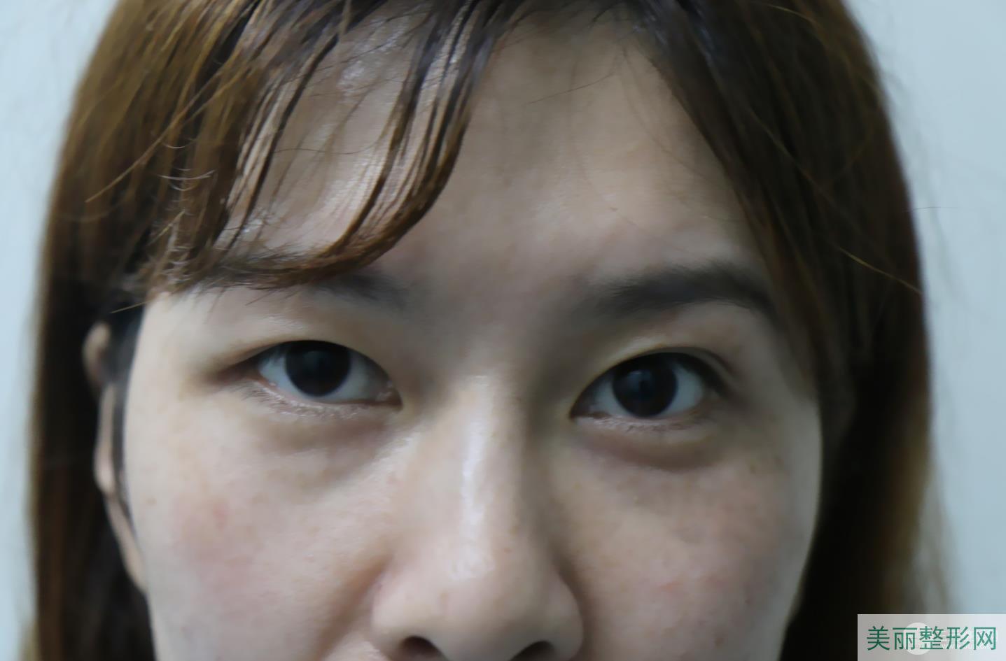 南充川北医学院整形外科怎么样 附双眼皮案例图~
