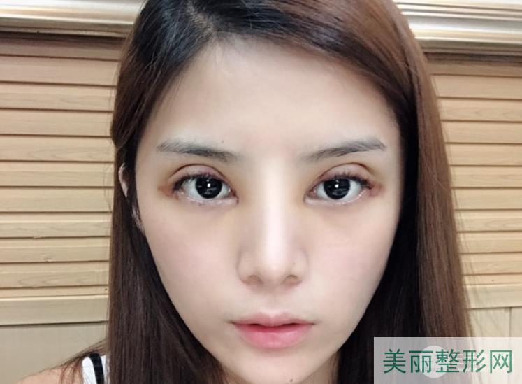 湘雅三医院整形科双眼皮案例 宽度弧度都完美~