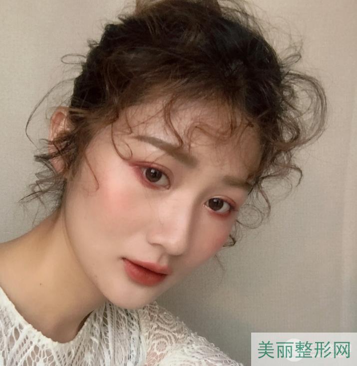 武汉三医院整形外科潘虹医生简介,隆鼻案例