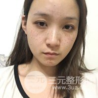 长江航运总医院美容外科价格表,附激光祛斑案例