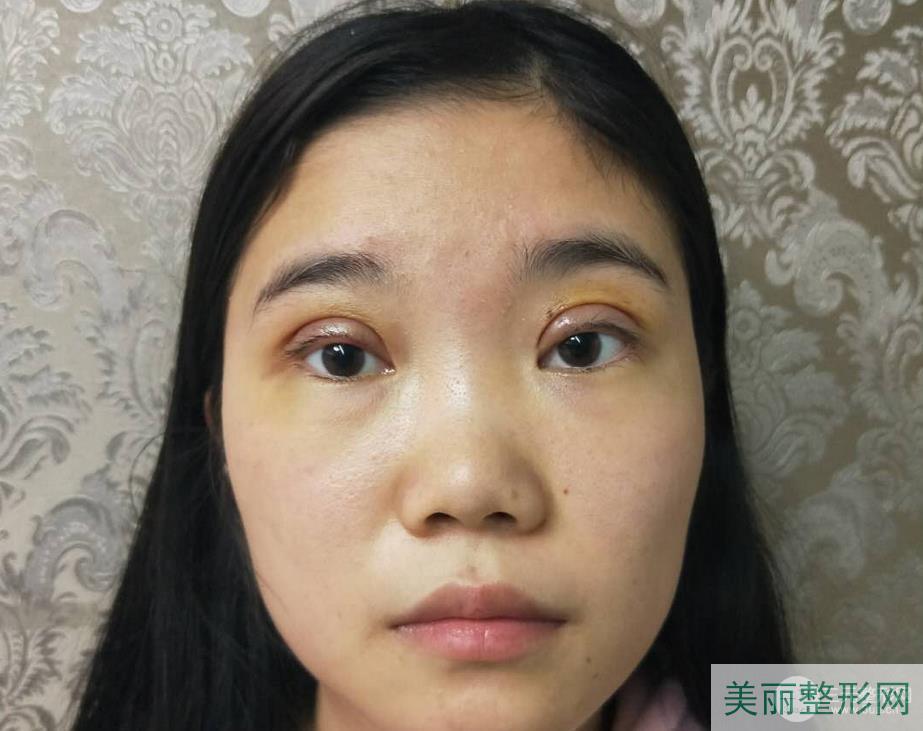 武汉三医院整形外科割双眼皮怎么样 附双眼皮真实案例~