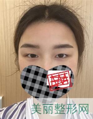 江苏省中医院整形美容科双眼皮案例 一双眼改变一张脸~