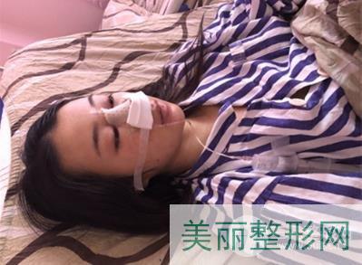 宁波解放军113医院整形科隆鼻案例 效果是我喜欢的样子