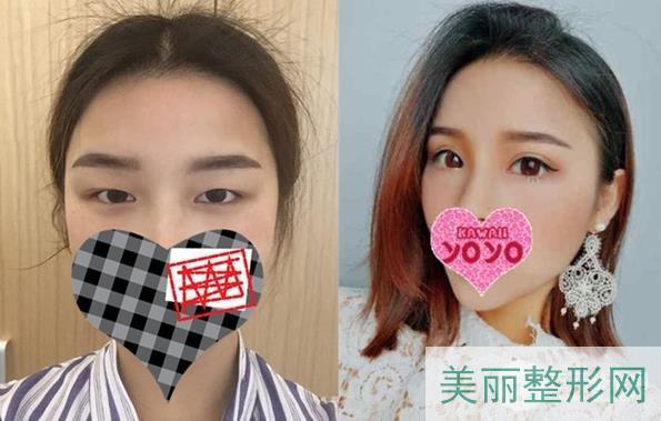 南京中大医院双眼皮怎么样?案例图+医生信息干货满满