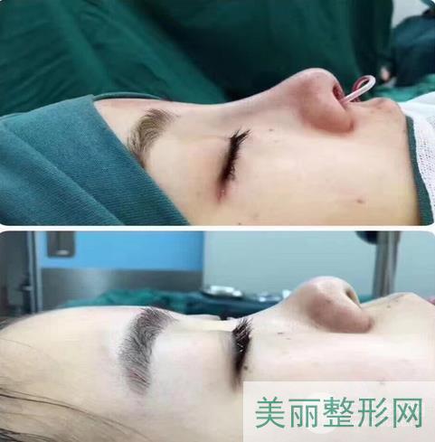 上海soy素氧整形医院好不好?价格表+口碑点评信息~