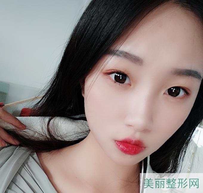 """湖南省人民医院谭军点阵激光祛斑案例 不再做上""""斑""""族~"""