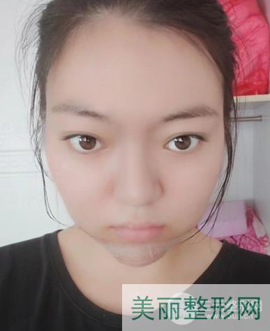 武汉三医院整形美容科垫下巴案例:我也是有下巴的人了~