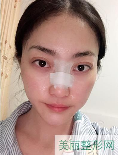 包头中心医院整形科鼻综合案例 术后效果反馈~