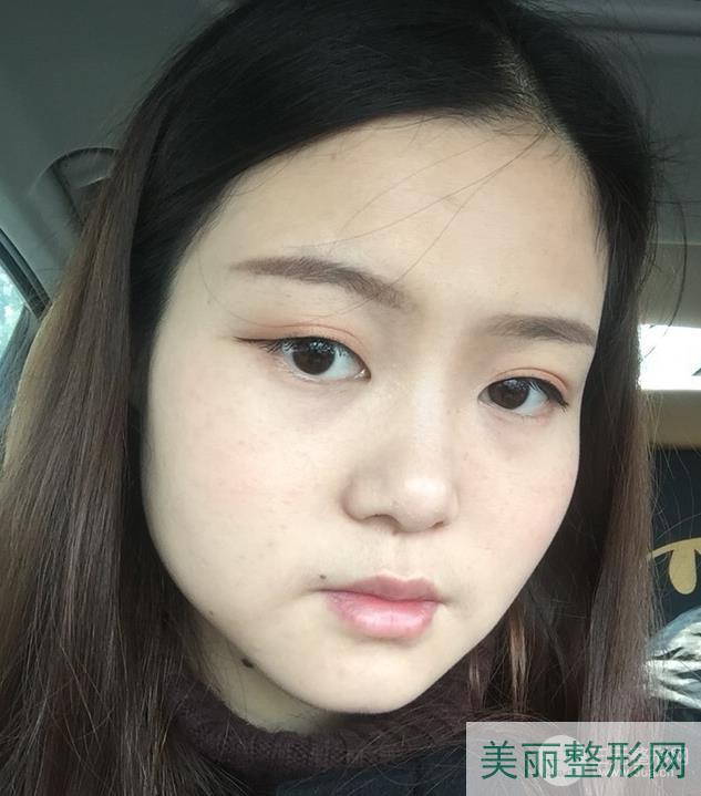 湖南省人民医院整形科削歡骨吗?轮廓整形案例(图)反馈