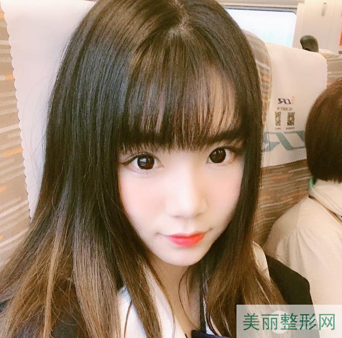 湘雅医院龙剑虹医生简介 双眼皮案例高清图