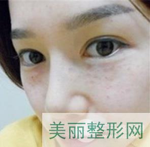 [种草]北京医院整形美容外科实力怎么样?附医生名单&案例~