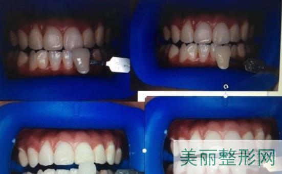 北京固德金冠口腔牙齿美白案例