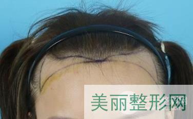 深圳丽格植发怎么样