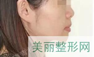 北京合生齿科隋青松案例