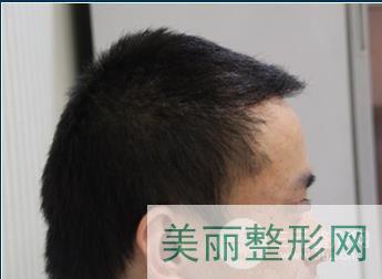 杭州格莱美植发