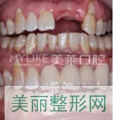 深圳美莱口腔植牙案例